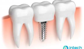 Trồng răng hàm trên giá bao nhiêu, giới thiệu kỹ thuật trồng răng mới nhất