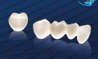 Nên trồng răng giả loại nào tốt và bền chắc nhất hiện nay?