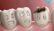 Tổng hợp cách ngừa sâu răng hiệu quả nhất – XEM NGAY