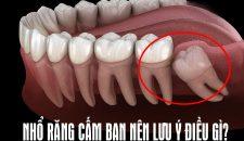 Nhổ răng khôn bao nhiêu tiền là hợp lý, cập nhập bảng giá nhổ răng khôn mới nhất