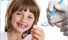 Nhổ răng sữa cho trẻ em tại nhà nên hay không?