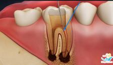 Giá nhổ răng hỏng, răng sâu bao nhiêu tiền