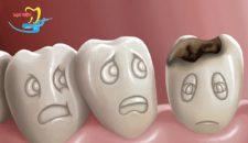 Nhổ răng khôn bị sâu có đau không thưa chuyên gia?