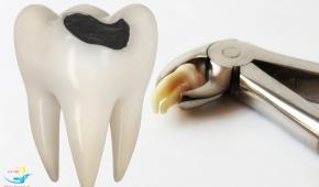Răng khôn bị sâu có nên nhổ, giá nhổ răng khôn bị sâu là bao nhiêu?