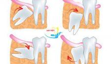 Nhổ răng khôn mọc lệch có đau không? Chuyên gia giải đáp