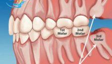 Nhổ răng khôn mọc ngang cần điều trị như thế nào?