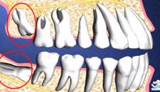 Nhổ răng số 8 nên hay không, liệu có nguy hiểm?
