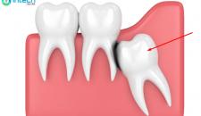 Nhổ răng khôn nguy hiểm không?