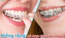 Niềng răng có được vĩnh viễn không?