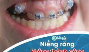 Dấu hiệu nhận biết niềng răng không thành công