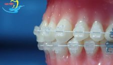 Thời gian niềng răng mắc cài sứ bao lâu và rút ngắn bằng cách nào?