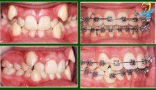 Chi tiết niềng răng khểnh như thế nào tại nha khoa uy tín