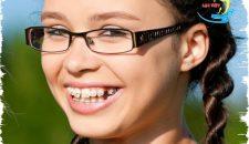 Thời gian niềng răng thưa mất bao lâu thì xong?