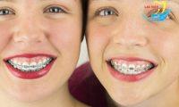 Niềng răng cho trẻ em lúc nào là hợp lý và ở đâu tốt nhất?
