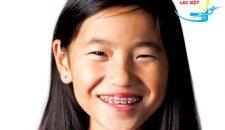 Niềng răng cho trẻ em giá bao nhiêu và phương pháp tiết kiệm nhất