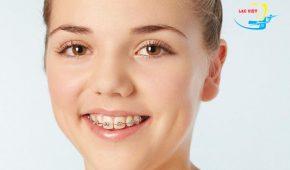 Niềng răng giữ lại răng khểnh có được hay không?