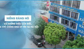 Niềng răng hô và những điều cần biết, địa chỉ chỉnh nha uy tín tại Hà Nội