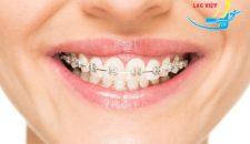 Quy trình niềng răng diễn biến ra sao?
