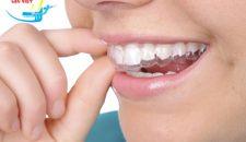 Niềng răng hô không mắc cài giá bao nhiêu hợp lý nhất?