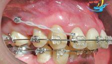 Răng hô nặng niềng răng có thể chữa khỏi hay không