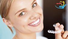 Niềng răng không mắc cài giá rẻ ở đâu đảm bảo chất lượng?