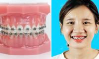 Niềng răng trả góp tại Hà Nội.