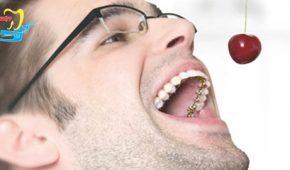Niềng răng mặt trong có tốt không và áp dụng với trường hợp nào?