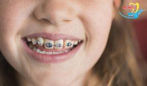 Niềng răng mắc cài có nguy hiểm không và có nên sử dụng không?
