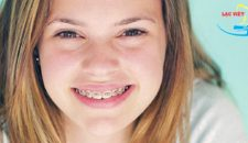 Niềng răng mất bao lâu và phương pháp nào đạt kết quả nhanh nhất?