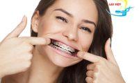 Niềng răng hô mất bao lâu và giải pháp giúp niềng răng nhanh chóng