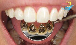 Niềng răng mặt trong có tốt không và hiệu quả như thế nào?