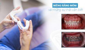 Niềng răng móm cần biết những sự thật này, bảng giá niềng răng móm 2019 ở Hà Nội