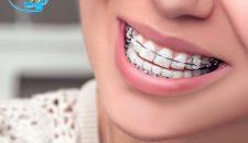 Chuyên gia tư vấn: Bị móm có niềng răng được không?