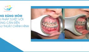 Niềng răng móm – Giải pháp tuyệt vời không cần đến phẫu thuật chỉnh hình