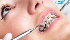 Các bước niềng răng hô tại trung tâm nha khoa uy tín