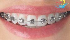 Niềng răng mắc cài tự buộc mất bao lâu và chi phí bao nhiêu?