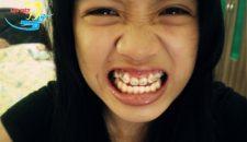 Răng khểnh có niềng được không và có nên niềng không?