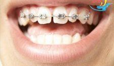Niềng răng thưa 1 hàm giá bao nhiêu tiền là hợp lý nhất?