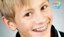 Chi phí niềng răng cửa thưa hết bao nhiêu thưa bác sỹ?