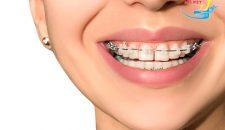 Băn khoăn răng thưa niềng răng được không?