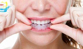 Thời gian niềng răng không mắc cài mất bao lâu?