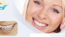 Tìm hiểu niềng răng mắc cài tự buộc là gì?