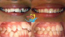 Niềng răng hô cho người lớn và những vấn đề cần biết