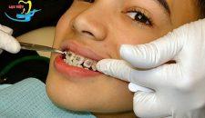 Chuyên gia nha khoa tư vấn: Phương pháp chỉnh răng móm hiệu quả
