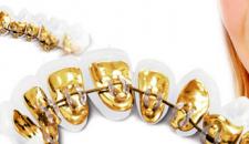 Niềng răng mặt trong mất bao lâu – Phương pháp rút ngắn thời gian