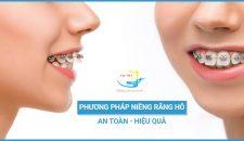 Phương pháp niềng răng hô an toàn, hiệu quả tiết kiệm chi phí