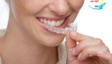 Giá niềng răng không mắc cài bao nhiêu và ở đâu có giá tốt nhất?