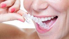 Nha sỹ giải đáp: Niềng răng không mắc cài có hiệu quả không?