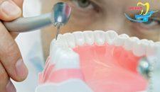 Trám răng sâu giá bao nhiêu, phương pháp nào được ưa chuộng nhất?