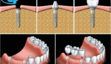 Trồng răng implant nha khoa là gì?